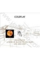 Купити - Музика - Coldplay: Parachutes / A Rush of Blood to the Head (Limited Edition Gift Pack: 2 CD + DVD) (Import)